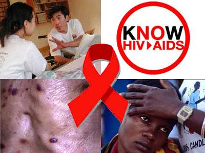 hiv-aids2
