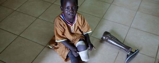 A six-year-old amputee at the Juba Physical Rehabilitation Reference Centre. He was injured while traveling in a truck that hit a landmine (ICRC/T. Stoddart/RT)